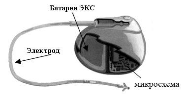 Электростимуляция сердца