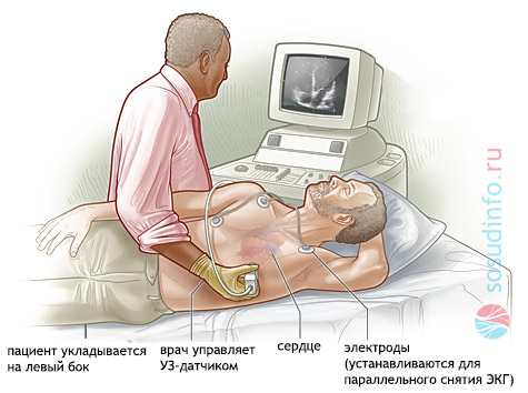 Кдр что это в кардиологии