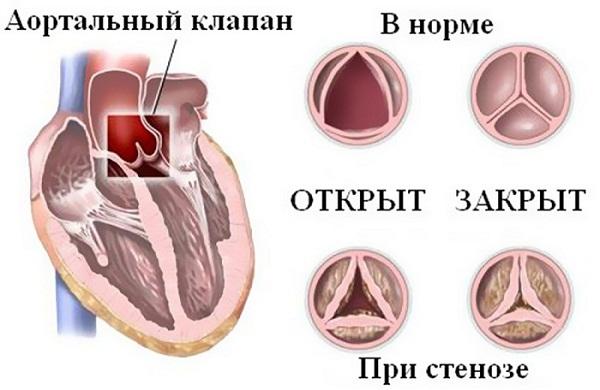 Перегрузка правых отделов сердца