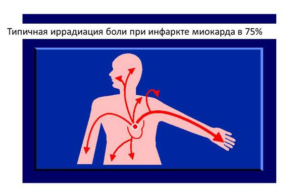 После инфаркта болит сердце