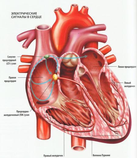 Ритмоводитель сердца