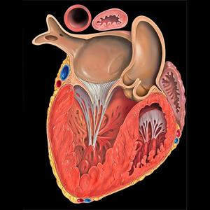 Утолщение стенки сердца