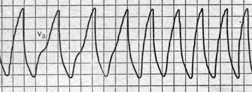 Вызвать остановку сердца